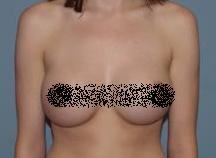 breastsesudah